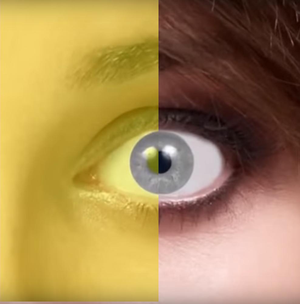 iride-pupilla2
